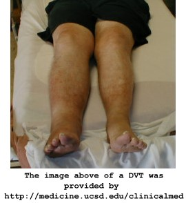 Deep Vein Thrombosis DVT Image