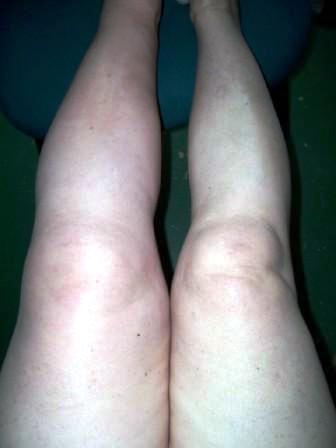Picture Of Leg Swollen From Blood Clot DVT Survivor Jackie Davis